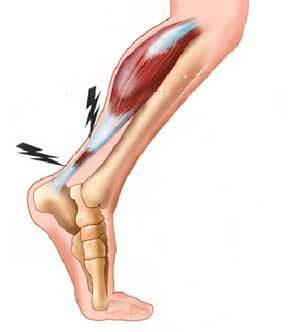 Le manque d'hydratation reste la cause principale de la tendinite du tendon d'Achille