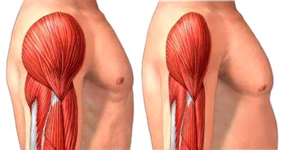 Une perte de poids n'est pas toujours optimale quand il sagit de masse musculaire